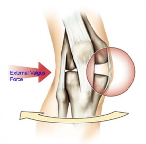 An external force applied to the outside of the right leg showing likely tear of the medial collateral ligament