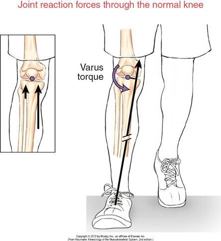 Showing the forces that operate on a normal tibial plateau and for which it was designed